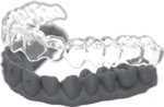 HQ - Clear Aligners